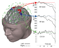 Clinical application of the EEG