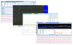 Easy ECG Holter Software