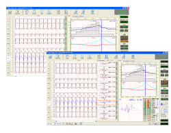Easy ECG Stress Software