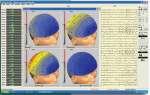 Neurotravel Win EEG Maps